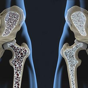 Osteoporosis img