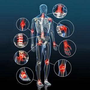 Osteoarthritis img