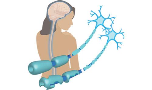 multiple sclerosis img-05