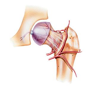 Hip Avascular Necrosis