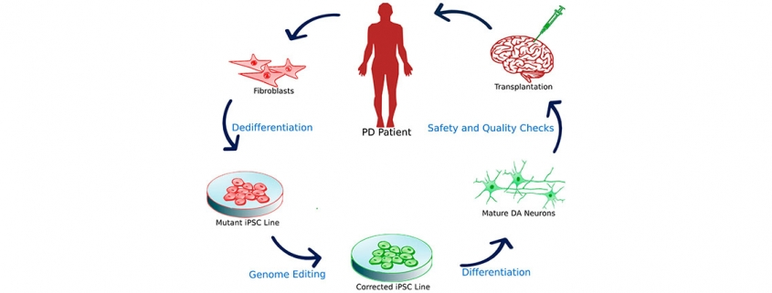 New approach against Parkinson's disease through stem cell research - سلول های بنیادی به کمک درمان پارکینسون می آیند