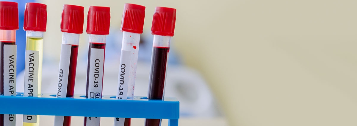 Possible Link Between Blood Type and COVID-19 Susceptibility and Severity - گروه خونی ممکن است در شدت ابتلا به کووید19 موثر باشد