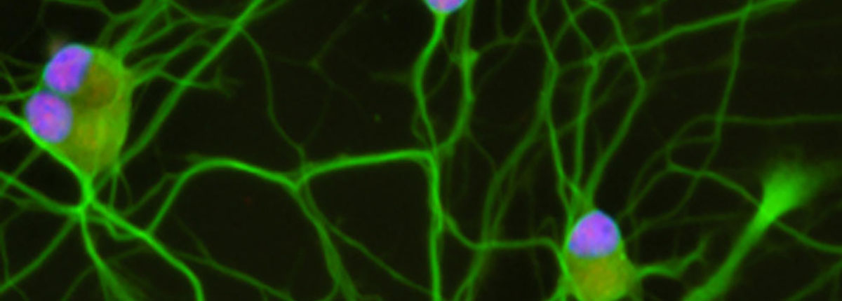 Motor neurons derived from patients point to new possible drug target for ALS - درمان جدید ALS