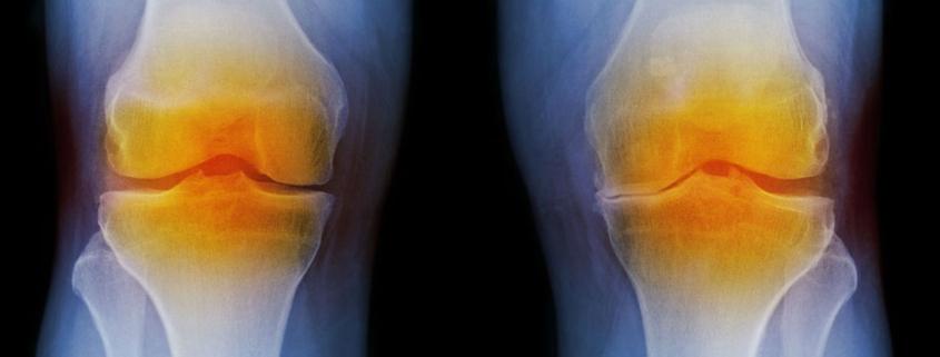 Nasal cartilage relieves osteoarthritis in the knee - درمان جدید و جالب آرتروز